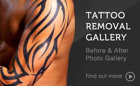 tattoo laser dermatology laser tattoo removal melbourne home