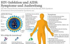 immunschwäche symptome hiv infektion und aids symptome und ausbreitung sputnik deutschland