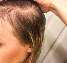 best haircut for alopecia solutions for postpartum hair loss after pregnancy first thyme mom