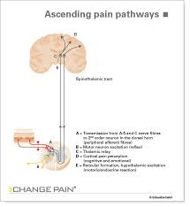 Pain Reflex Pathway Change Pain Chronic Pain Picture Library