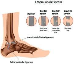 Anterior Talofibular Ligament Repair Ankle Sprain Physical Therapy Cyberpt