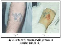 surgical management of tattoos