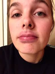 Challenge Through Your Nose The Jenner Challenge Is Leaving With Swollen Bruised