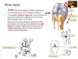 Anatomy Of Knee Injuries Imaging Anatomy Knee Injuries