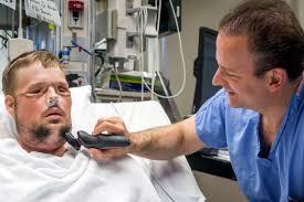 Free Hug Guy A U0027miracle U0027 Face Transplant Gives Young Man A New Life