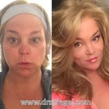 feminization hair 19 best facial feminization surgery ffs images on pinterest