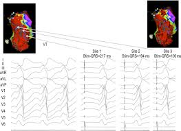 Map Of Vt Reasons For Recurrent Ventricular Tachycardia After Catheter