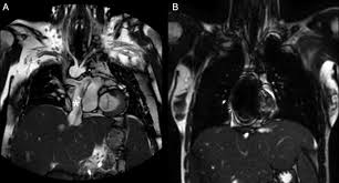 role of imaging in the evaluation of single ventricle with the