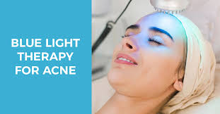 blu light therapy for acne everything you need to know about blue light therapy for acne
