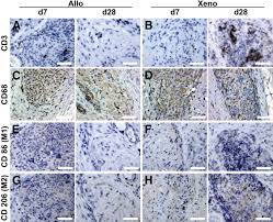 immunogenicity of decellularized porcine liver for bioengineered