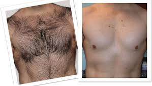 how dense should male pubic hair be natural chest hair removal options at home for men