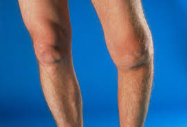Picture Of Human Knee Muscles Oa Knee Replacement Pictures Before And After What Happens