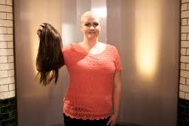 Is Hair Loss A Sign Of Cancer Causes Alopecia Areata And Can You Treat This Type Of Hair Loss