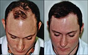 hair plugs for men february 2012 hair transplant information for you