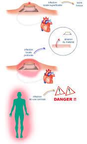 infection chambre implantable cabinet infirmier ollioules soins pratiqu s par of chambre