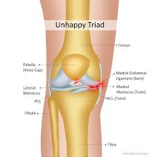 Anatomy Of Knee Injuries Unhappy Triad Or Blown Knee Or Terrible Triad Etiology Symptoms
