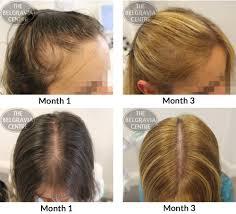 rogaine for women success stories belgravia hair loss blog