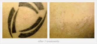 laser tattoo removal before u0026 after dr laser