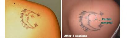 home the tattoo removal placethe tattoo removal place