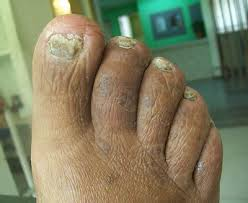 thick toenails causes remedies treatment and cure