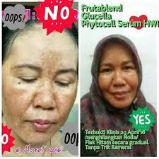 Serum Wajah Hwi prime skin serum pemutih wajah stokist hwi solusi praktis obat