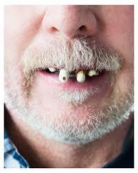 gammel teeth joke teeth joke teeth for carnival in a value pack