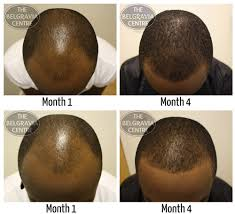 hairline restoration for black men has lebron james had hair loss treatment