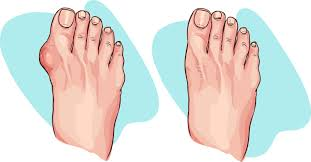 bunion surgery treatment guide costs u0026 treatments medigo blog