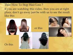 special cuts for women with hairloss hair loss in women female pattern hair loss female hair loss