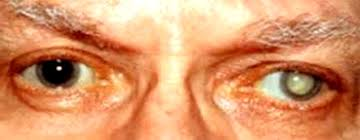 Can Cataracts Cause Blindness Cataract U2013 Swarup Eye Centre