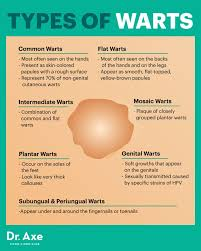 Home Remedies For Planters Warts by How To Get Rid Of Warts Naturally Wart Symptoms Causes Dr Axe