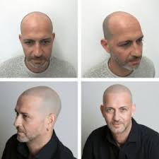 declan donnelly hair transplant best 25 wayne rooney hair transplant ideas on pinterest wayne