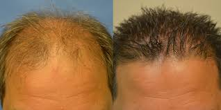 hair plugs for men hair transplant before and after photos men hair restoration of