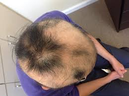 hair loss case patient m your best choice for acupuncture and