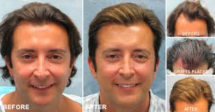 transplant hair second round draft shedding after hair transplant effluvium bernstein medical