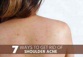 7 ways to get rid of shoulder acne overnight hira tips