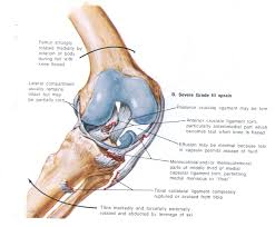 Anatomy Of Knee Injuries Knee Injuries Milford Physiotherapy 0800 749946