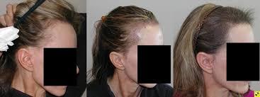 rogaine for women success stories hairline lowering procedure hairlosstalk forums