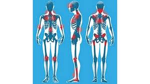 Webmd Human Anatomy Overview Of Fibromyalgia Youtube