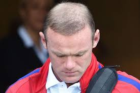 paddy mcguiness spray hair hair expert reveals exactly what s happened to wayne rooney s hair