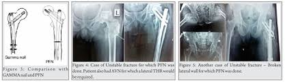 complications related to intertrochanteric fractures