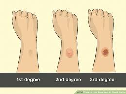 Rug Burn Infection Symptoms How To Use Aloe Vera To Treat Burns 9 Steps With Pictures