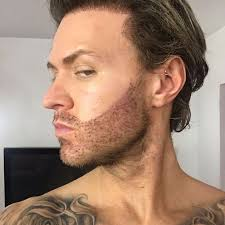 does kyle wear hair extensions geordie shore s kyle christie gets a 12 hour beard transplant to