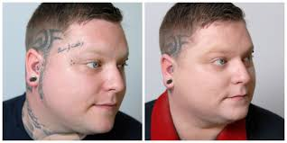 tattoo camo before and after tattoo before and after veil cover cream skin camouflage before
