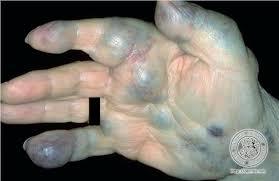 knoten handinnenfläche dermis hämangioma racemosum bild