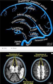 best 25 radiology ideas on pinterest radiology student medical