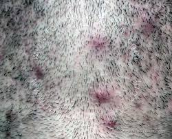 electric shaver ingrown hair how to get rid of ingrown hairs folliculitis clinic