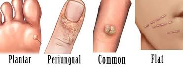How To Remove Planters Warts by Wartrol Reviews Does It Help To Remove Warts Find The Truth Here