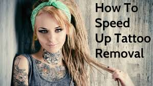 21 powerful tattoo removal tips to speed up the process ink revoke