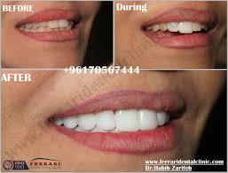 hollywood smile lebanon blog and reviews veneers lumineers teeth